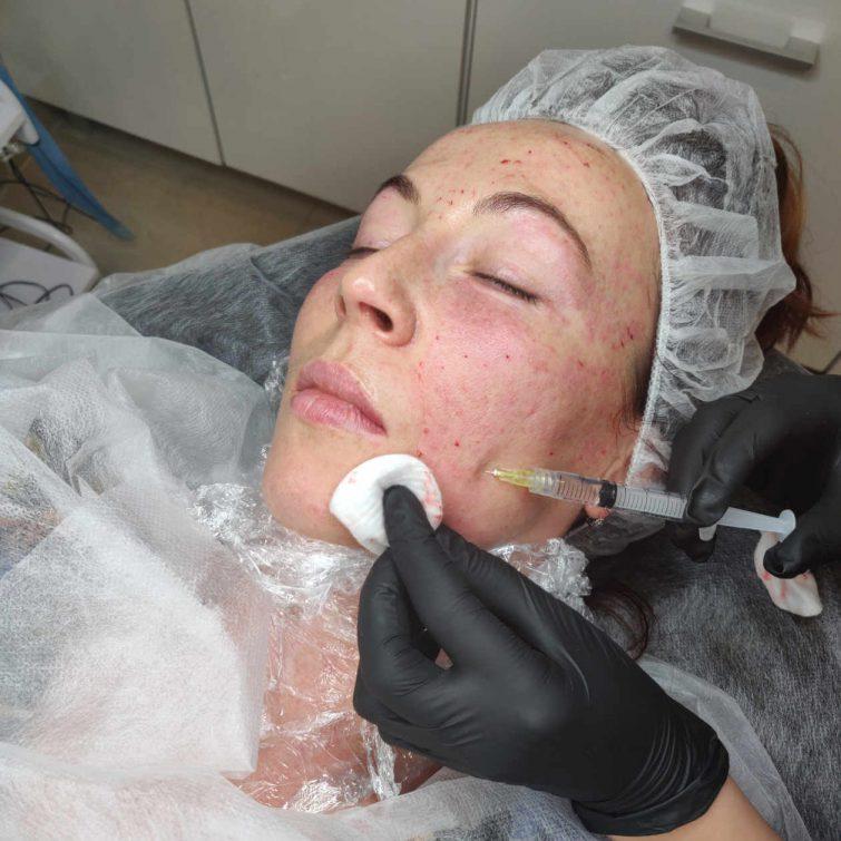 medycyna estetyczna szkolenia mezoterapia igłowa