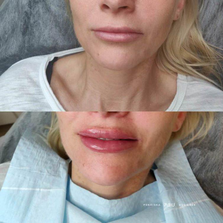 medycyna estetyczna szkolenie russian lips